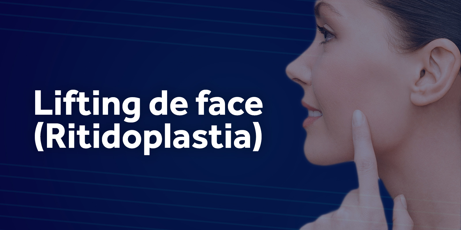 Ritidoplastia (Lifting de face)