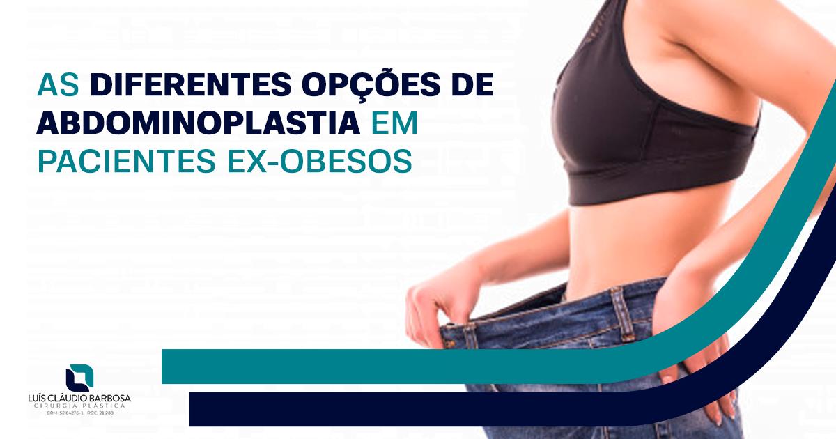 Tipos de abdminoplastia | DR. LUIS CLAUDIO BARBOSA